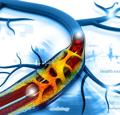 Blutdruckabfall (Hypotonie) - UPD